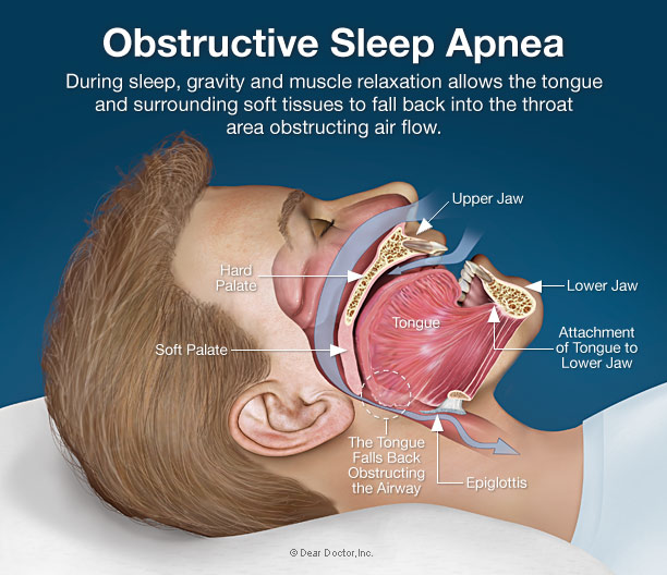 spalna apnea